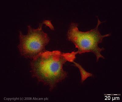 Immunocytochemistry/ Immunofluorescence - Synaptojanin antibody - Synaptic Marker (ab19904)