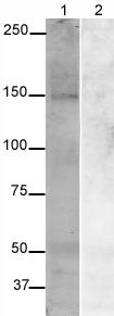 Western blot - Synaptojanin antibody - Synaptic Marker (ab19904)