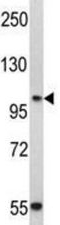 Western blot - Anti-P cadherin antibody - N-terminal (ab190076)