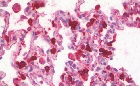 Immunohistochemistry (Formalin/PFA-fixed paraffin-embedded sections) - Anti-SFTPA1 + SFTPA2 antibody (ab190087)