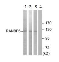 Western blot - Anti-RANBP6 antibody (ab190090)
