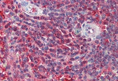 Immunohistochemistry (Formalin/PFA-fixed paraffin-embedded sections) - Anti-PSME2 antibody - C-terminal (ab190113)