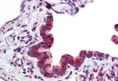 Immunohistochemistry (Formalin/PFA-fixed paraffin-embedded sections) - Anti-CBARA1 antibody (ab190114)