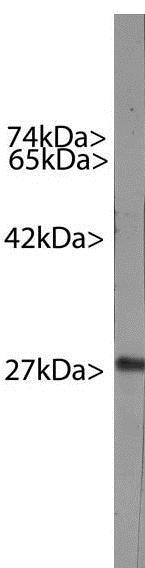 Western blot - Anti-Hsp27 [6H11] antibody (ab190314)