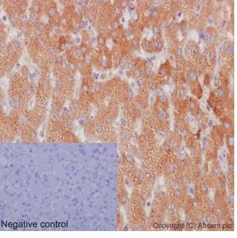 Immunohistochemistry (Formalin/PFA-fixed paraffin-embedded sections) - Anti-NSDHL [EPR14490] antibody (ab190353)
