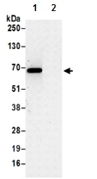 Immunoprecipitation - Anti-CD30 antibody - N-terminal (ab190496)