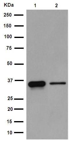 Western blot - Anti-TTMB [EPR11781] antibody (ab190695)