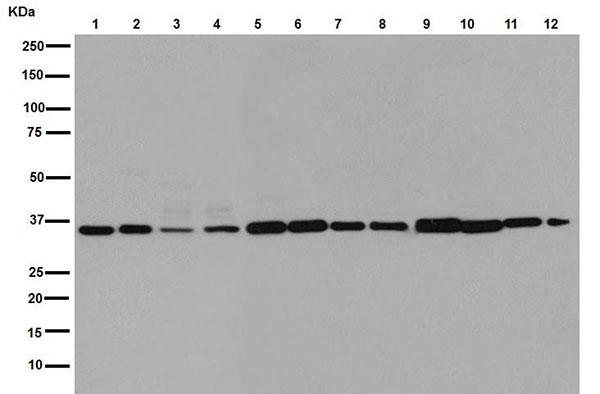Western blot - Anti-OR5I1 [EPR15972] antibody (ab190792)