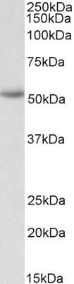 Western blot - Anti-ENT1 antibody - N-terminal (ab190877)