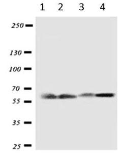Western blot - Anti-SLC22A7 antibody (ab191018)