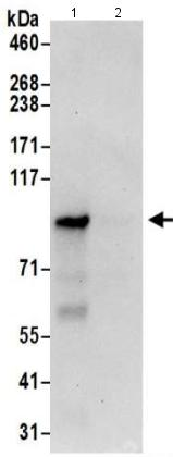 Immunoprecipitation - Anti-CNNM4 antibody (ab191207)