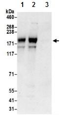 Immunoprecipitation - Anti-ADCY9 antibody (ab191213)