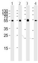 Western blot - Anti-TUBA6 antibody - N-terminal (ab191299)