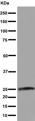 Western blot - Anti-RRAS [EPR15843] antibody (ab191399)