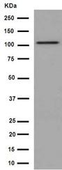 Western blot - Anti-DPP6 antibody [EPR15944] (ab191421)
