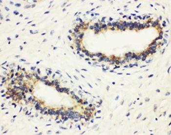 Immunohistochemistry (Formalin/PFA-fixed paraffin-embedded sections) - Anti-HLA DMB antibody (ab191445)