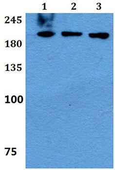 Western blot - Anti-UBR2 antibody (ab191505)