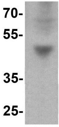 Western blot - Anti-IFIT3 antibody - C-terminal (ab191689)