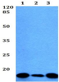 Western blot - Anti-SEC61B antibody (ab192329)