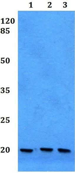 Western blot - Anti-CABP5 antibody (ab192361)