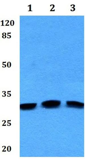 Western blot - Anti-CABP4 antibody (ab192367)