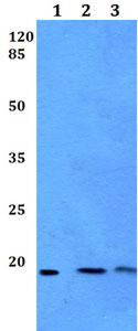 Western blot - Anti-MED30 / TRAP25 antibody (ab192523)