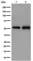 Western blot - Anti-Retinoic Acid Receptor gamma antibody [EPR15901] (ab192608)