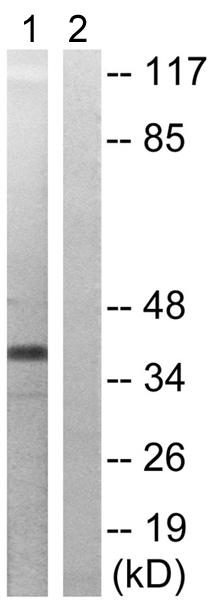 Western blot - Anti-MEK3 (phospho T222) antibody (ab192659)
