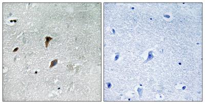 Immunohistochemistry (Formalin/PFA-fixed paraffin-embedded sections) - Anti-MEK3 (phospho T222) antibody (ab192659)