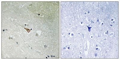 Immunohistochemistry (Formalin/PFA-fixed paraffin-embedded sections) - Anti-ALK (phospho Y1096) antibody (ab192661)