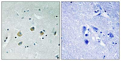 Immunohistochemistry (Formalin/PFA-fixed paraffin-embedded sections) - Anti-MAP3K8 (phospho S400) antibody (ab192667)
