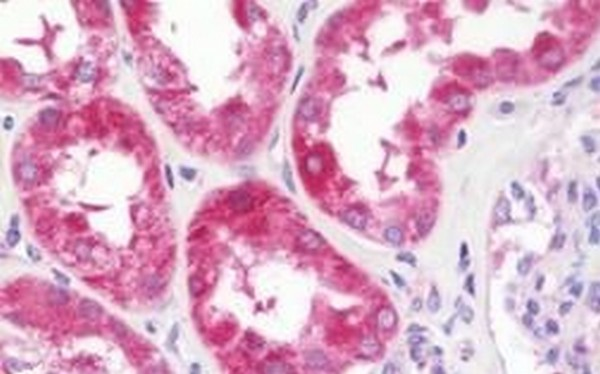 Immunohistochemistry (Formalin/PFA-fixed paraffin-embedded sections) - Anti-XPNPEP3 antibody (ab192826)