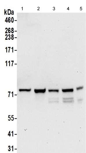 Western blot - Anti-DYNC1I2 antibody - C-terminal (ab192920)