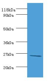 Western blot - Rabbit Polyclonal to Purine Nucleoside Phosphorylase DeoD type (ab193482)