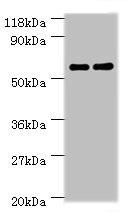 Western blot - Anti-Carboxylesterase 1C antibody (ab193485)