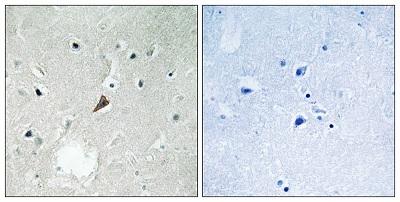 Immunohistochemistry (Formalin/PFA-fixed paraffin-embedded sections) - Anti-PYK2 (phospho Y579) antibody (ab193674)