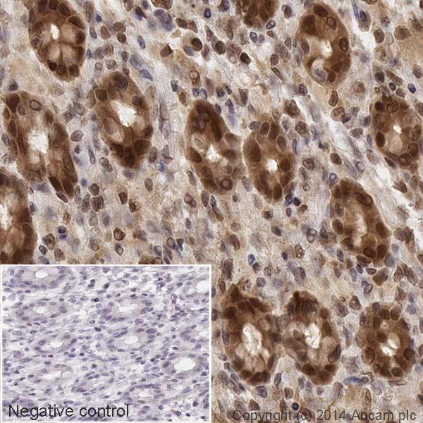 Immunohistochemistry (Formalin/PFA-fixed paraffin-embedded sections) - Anti-MEK1 antibody [E342] (HRP) (ab193987)
