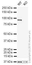 Western blot - Anti-beta Catenin antibody [E247] (HRP) (ab194120)