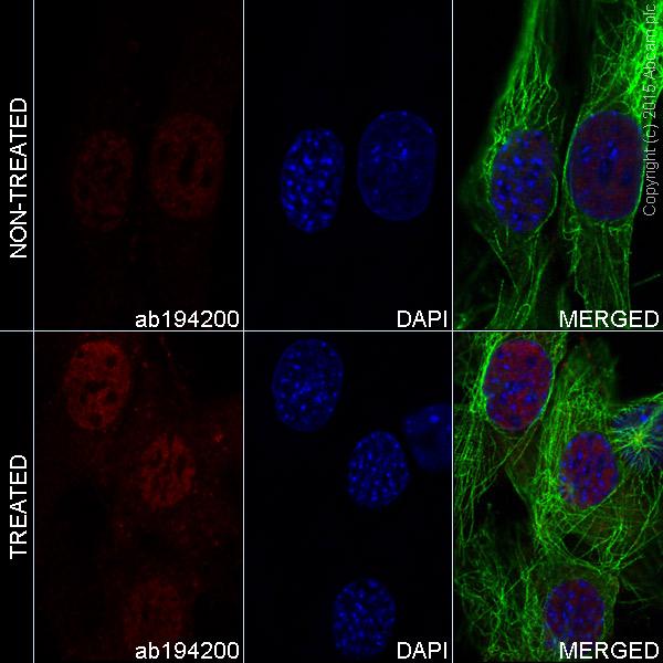 Immunocytochemistry/ Immunofluorescence - Anti-AKT1 (phospho S473) antibody [EP2109Y] (Alexa Fluor® 647) (ab194200)