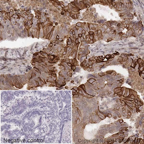 Immunohistochemistry (Formalin/PFA-fixed paraffin-embedded sections) - Anti-Cytokeratin 20 antibody [EPR1622Y] (HRP) (ab194220)