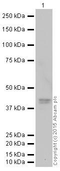 Western blot - Anti-Cytokeratin 20 antibody [EPR1622Y] (HRP) (ab194220)