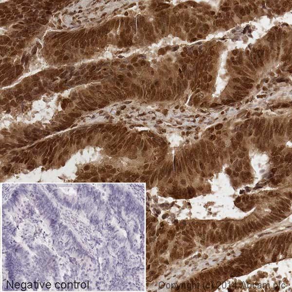 Immunohistochemistry (Formalin/PFA-fixed paraffin-embedded sections) - Anti-p27 KIP 1 antibody [Y236] (HRP) (ab194235)