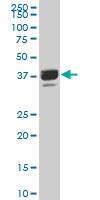 Western blot - Anti-PRR16 antibody (ab194492)
