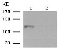 Western blot - Anti-alpha 1 Sodium Potassium ATPase (phospho S16) antibody (ab194532)