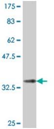 Western blot - Anti-DCST1 antibody (ab194559)