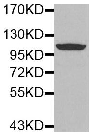 Western blot - Anti-Glutamate Receptor 1 (AMPA subtype) (phospho S849) antibody (ab194774)