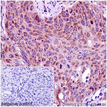 Immunohistochemistry (Formalin/PFA-fixed paraffin-embedded sections) - Anti-MRPL48 antibody [EPR16328] (ab194826)