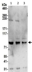 Western blot - Anti-SHCBP1 antibody (ab195311)