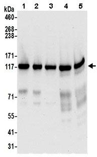 Western blot - Anti-PPFIBP1 antibody (ab195339)