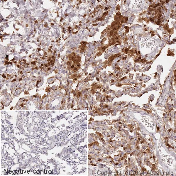 Immunohistochemistry (Formalin/PFA-fixed paraffin-embedded sections) - Anti-S100A4 antibody [EPR2761(2)] (HRP) (ab195523)